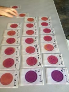 So many E.Coli samples!!